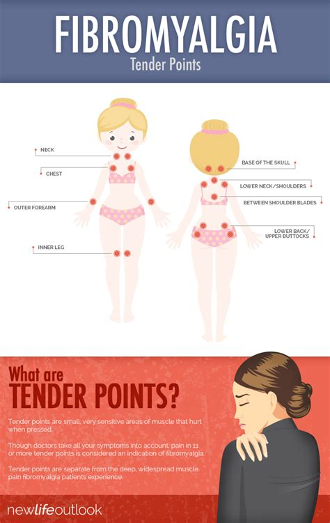 Fibromyalgia Tender Points: What and Where Are the Tender ...