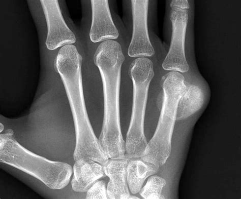Fifth Metacarpal Fracture - Fracture Treatment