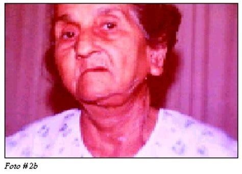 Fístula De Las Glándulas Salivales