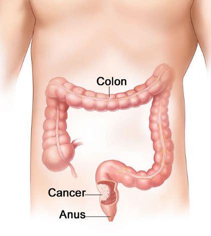 FOLFOX no câncer de cólon, esquema de tratamento que ...