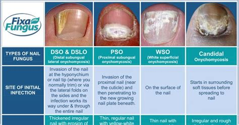Foot fungus types pictures   Awesome Nail