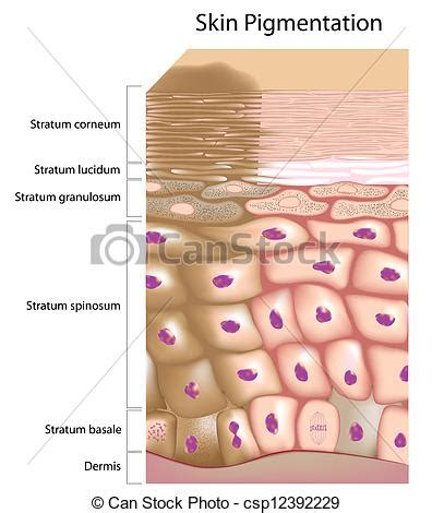 Formation of uneven skin tone. Overactive melanocyte ...