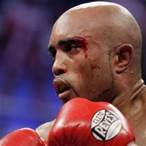 Foto: El boxeador español Gabriel Campillo perdió su ...