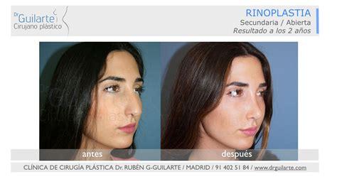 Fotos Antes y Después Rinoplastia. Opiniones Operación Nariz