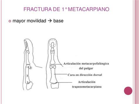 Fractura de 1° y 5° metacarpiano