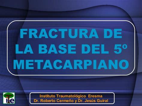 Fractura de la base del 5º metacarpiano
