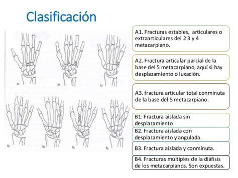 Fractura de la mano adriana