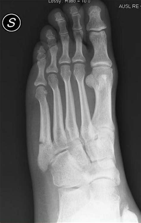 Frattura del quinto metatarso del piede, riabilitazione e ...