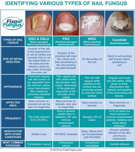 Fungal Infections – Four Types of Nail Fungus