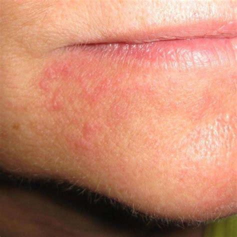 Funghi della pelle: come riconoscerli  Foto    Mamma PourFemme