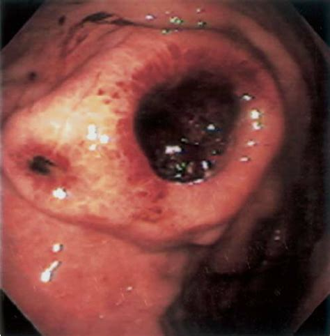 Gastric metastasis of a cutaneous melanoma | Download ...