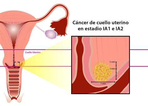 Ginecología y Diagnóstico Prenatal   Equipo Dr.Chacón ...