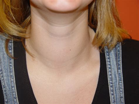 Goiter Symptoms « Ask the Doctor and be Healthy
