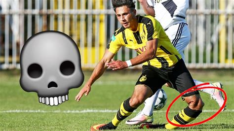 *GRAPHIC CONTENT* WORST INJURIES IN FOOTBALL! (FIFA 17 ...