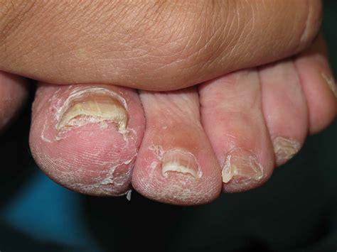 Grimalt Dermatologia No son fongs ! - Grimalt Dermatologia