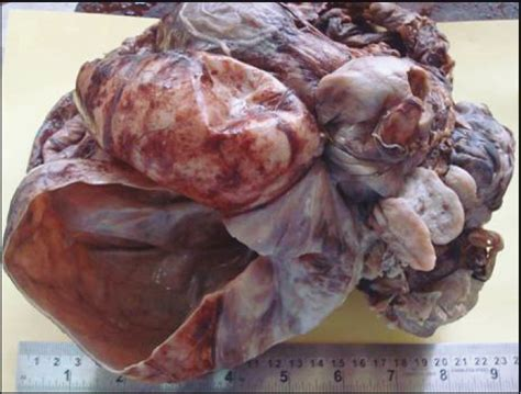 Growing teratoma syndrome: A rare complication of germ ...