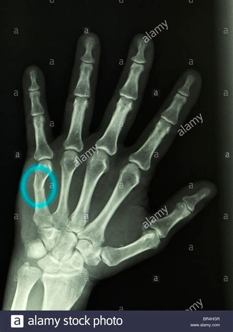 hand x-ray of a 57 year old man showing a 5th metacarpal ...