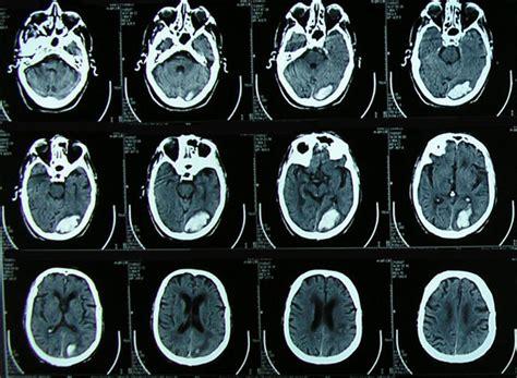 Hemorragia Cerebral y antiagregantes plaquetarios