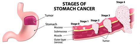 HER2 testing in gastric cancer - HEALTH CODIFY.CLUB