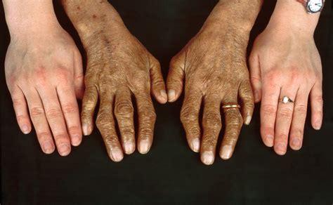 Hereditary Hemochromatosis - Hematology and Oncology - MSD ...