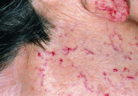 Hereditary Hemorrhagic Telangiectasia - Hematology and ...