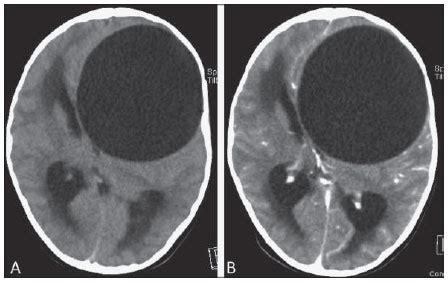 Hidatidosis cerebral: aspectos clínicos e imagenológicos ...