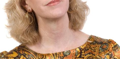 Hipertiroidismo Causas, síntomas y tratamiento