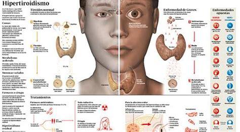 Hipertiroidismo: qué es, causas, síntomas y tratamiento