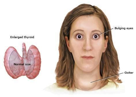 Hipertiroidismo sintomas   Demedicina.com