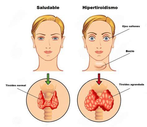Hipotiroidismo e Hipertiroidismo: Aprende sus diferencias ...