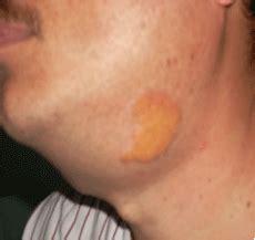 Histiocitosis X: presentación de tres casos
