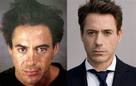 Hombres famosos antes y después de una Cirugía Estética