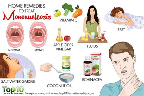 Home Remedies to Treat Mononucleosis | Top 10 Home Remedies