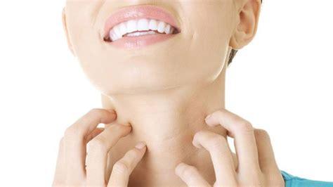 Hongos en la piel: Causas, síntomas y tratamiento   La ...