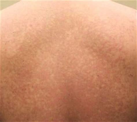 Hongos en la piel: ¿Qué es la pitiriasis versicolor ...