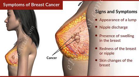 Hospitals in Nairobi Offering Free Breast Cancer Screening ...