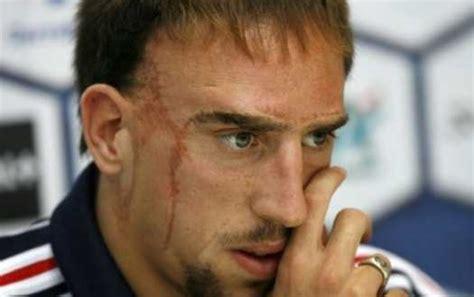 How Franck Ribery got his scars - FootyBlog.net