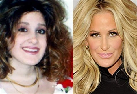 How Real Are The Housewives? RHOA Plastic Surgery Exegesis ...