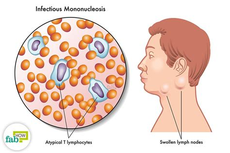 How to Treat Mononucleosis with Simple Home Remedies | Fab How