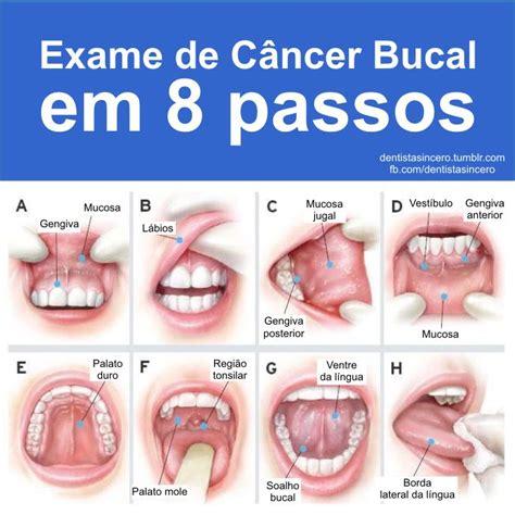 HPV aumenta risco de câncer de boca e garganta em jovens ...