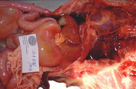 href=http://cirrhosisblog.net/signs-cirrhosis-liver ...