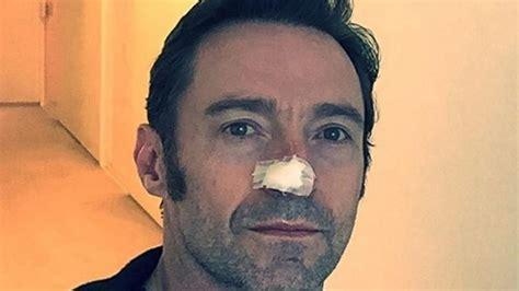 Hugh Jackman, operado de cáncer de piel