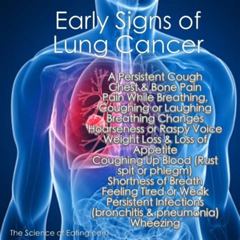 Image Gallery lung cancer early symptoms