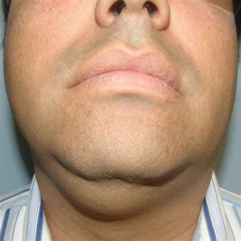 Image Gallery Sublingual Cancer