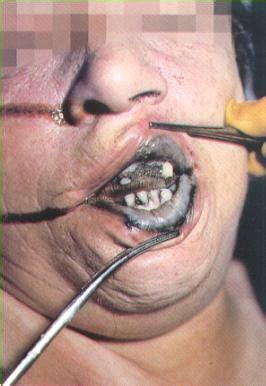 Imagen Odontología forense - grupos.emagister.com