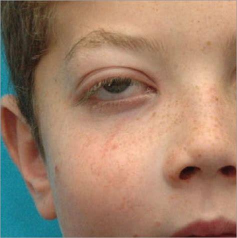Immature Teratoma of the Maxillary Sinus: A Rare Pediatric ...