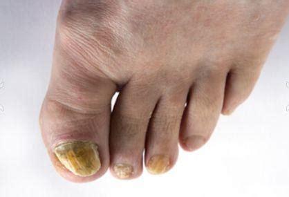 Infección por hongos en las uñas » HONGOS EN LA PIEL