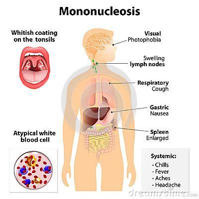 Infectious Mononucleosis Cartoon Vector | CartoonDealer ...