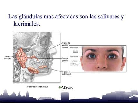 Inflamacion de las Glandulas Salivares
