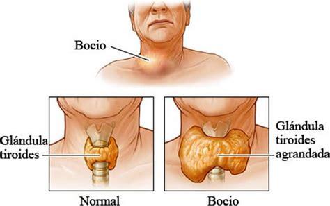Inflamación de Tiroides: Síntomas de Tiroides inflamada ...